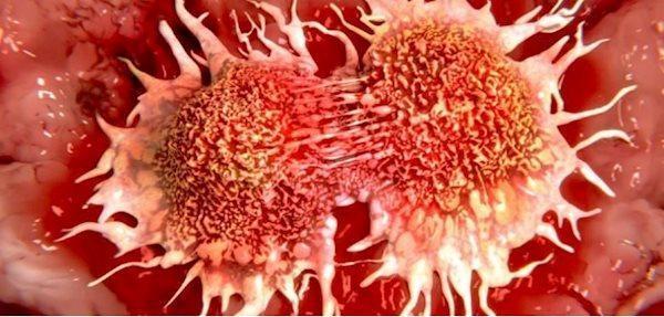 چگونه درد سرطان کنترل می گردد؟